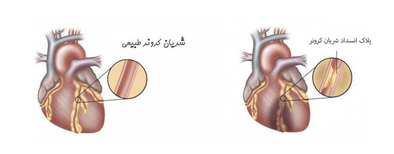علائم حمله سکته قلبی، سکته قلبی چیست، علائم بروز سکته قلبی، چگونه می توان از سکته قلبی جلوگیری کرد
