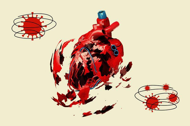چگونه می توان از سکته قلبی جلوگیری کرد درمان سکته قلبی سکته قلبی چیست علائم بروز سکته قلبی علائم حمله سکته قلبیعلائم سكته قلبي علائم سکته قلبی در زنان عوارض بعد از سکته قلبی نشانه های سکته قلبی