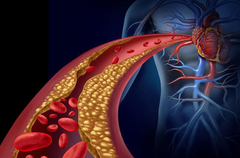 چگونه می توان از سکته قلبی جلوگیری کرد