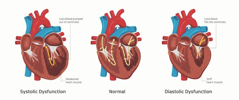 نارسایی قلبی علائم نارسایی قلبی درمان نارسایی قلبی طول عمر بیماران نارسایی قلبی انواع نارسایی قلبی نارسایی احتقانی قلب نارسایی بطن چپ نارسایی قلبی در جوانان نارسایی قلبی و تنگی نفس