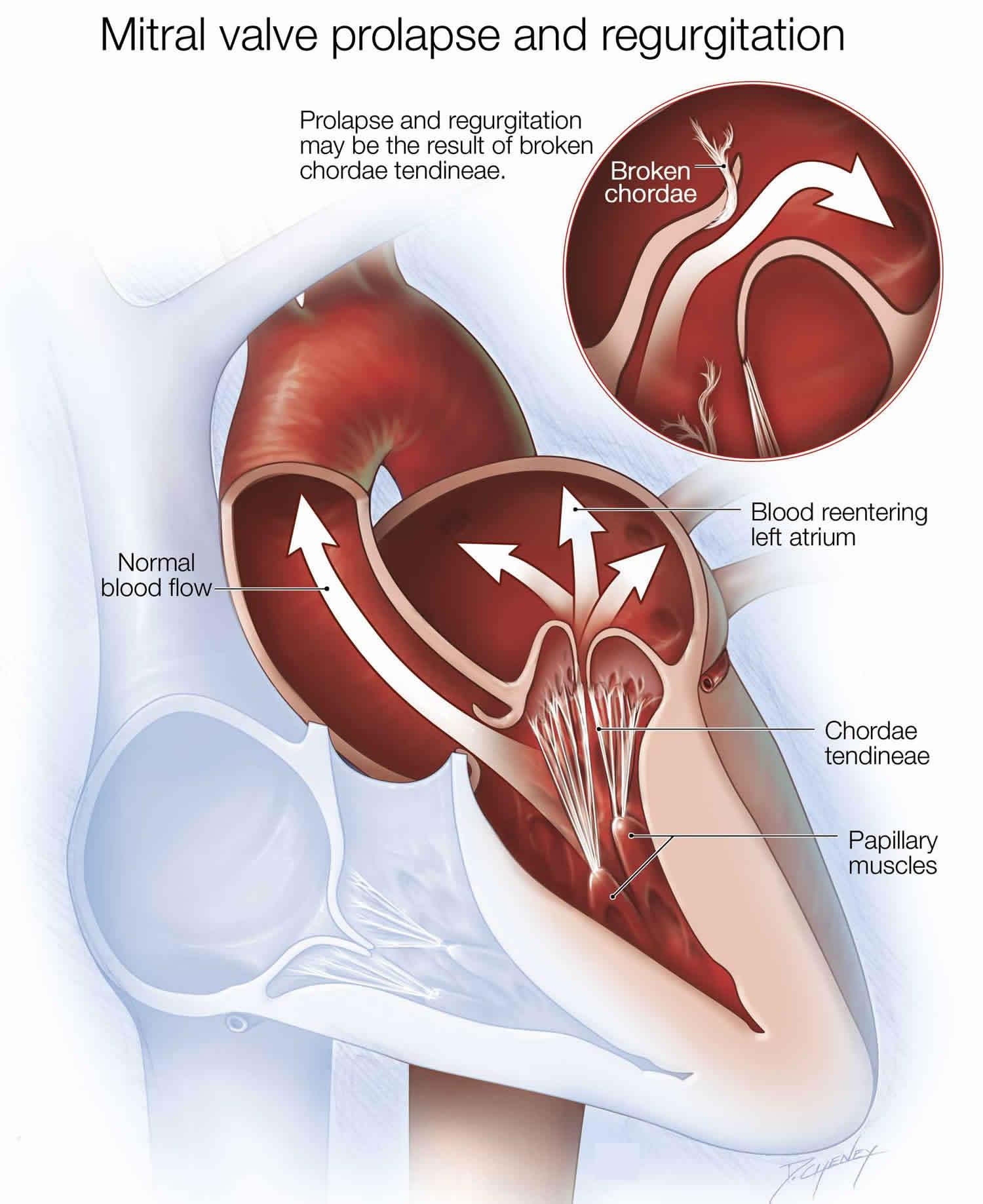پرولاپس دریچه میترال چیست؟ درمان گشادی دریچه میترال قلب چیست؟ گشادی دریچه آئورت افتادگی دریچه میترال و ورزش پرولاپس چیست شلی دریچه میترال نرمی دریچه میترال علائم افتادگی دریچه میترال