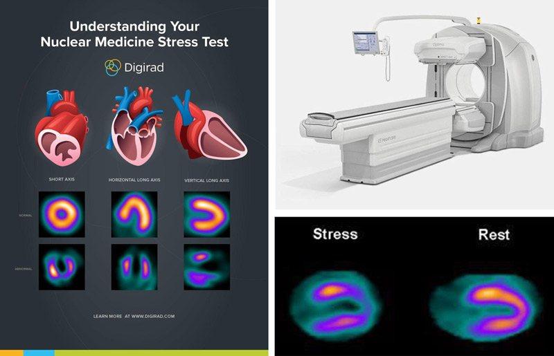 اسکن هسته ای قلب چیست اسکن هسته ای قلب اسکن هسته ای قلب چگونه انجام میشود اسکن هسته ای قلب مشهد تحلیل اسکن قلب عوارض اسکن هسته ای برای اطرافیان گاما اسکن چیست تحلیل اسکن قلب