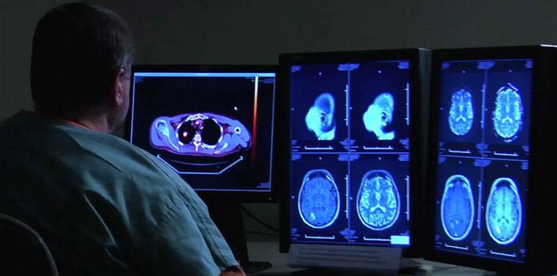 Nuclear-scan-of-the-heart-ghlb-negar-8-1.jpg