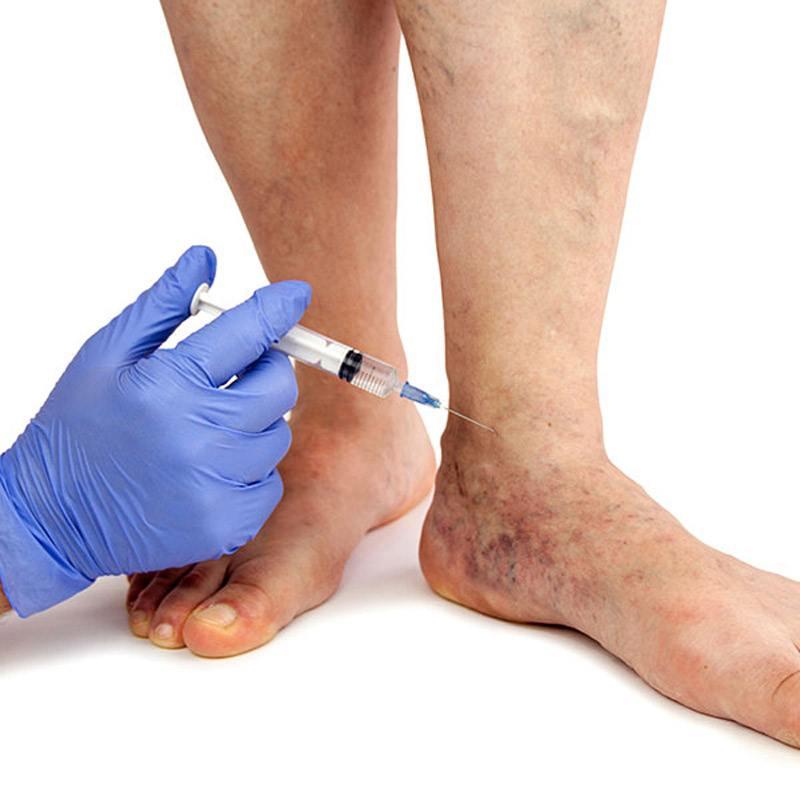 واریس چیست درمان قطعی واریس پا درمان سریع واریس درمان واریس با لیزر درمان واریس با لیزر در مشهد کلینیک واریس درد واریس پا چگونه است