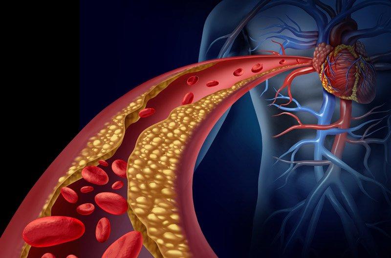 سکته قلبی علائم سکته قلبی در جوانان علائم سکته قلبی خاموش حمله قلبی چگونه رخ میدهد جلوگیری از سکته قلبی فوری کمک های اولیه در سکته قلبی عوارض سکته قلبی رد كردن سكته قلبي هنگام سکته قلبی چه کنیم