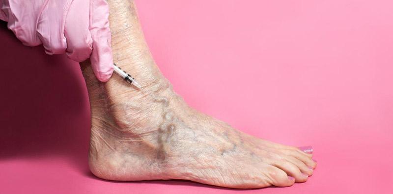 Treatment-of-varicose-veins-1.jpg