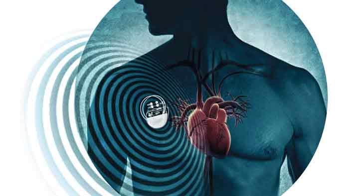 Heart-Battery-ghalb-negar-3.jpg