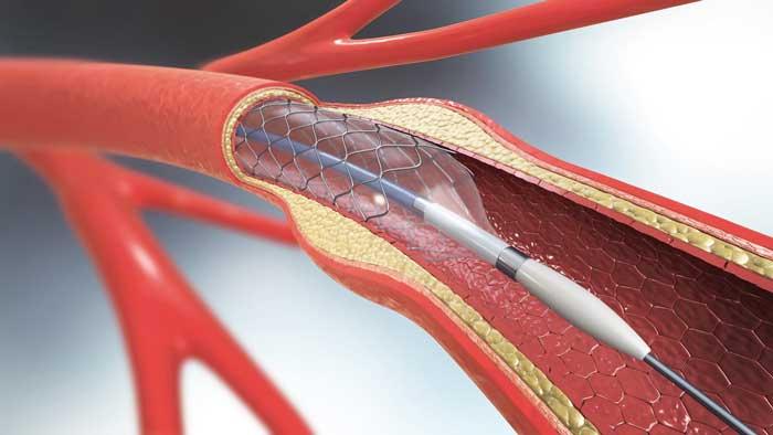 Heart-stent-ghalb-negar2.jpg